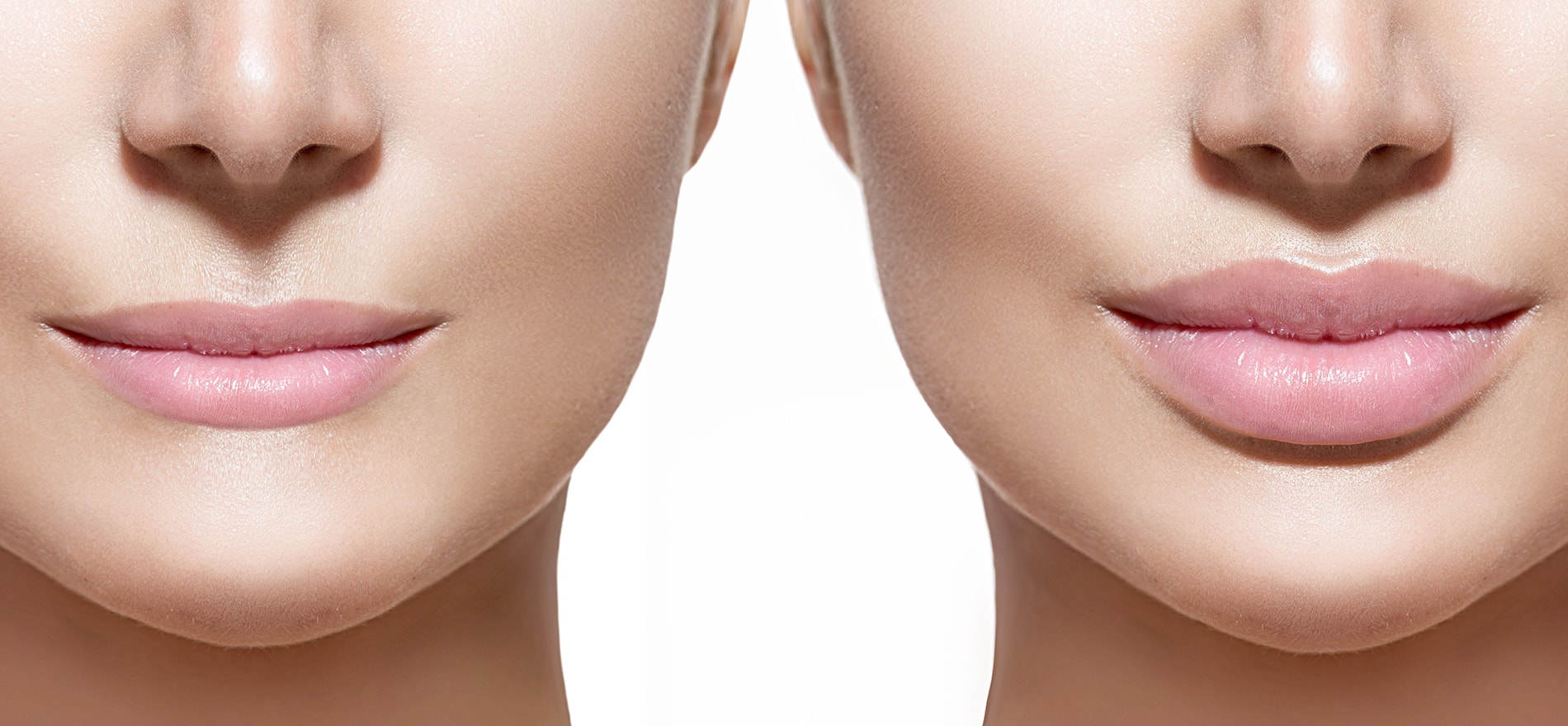 Lippen-aufspritzen-Lippenunterspritzung-Hyaluronsäure